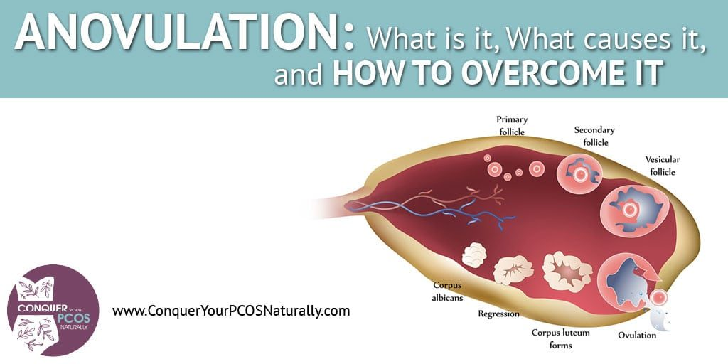Anovulation: What Is It, What Causes It, And How To Overcome It