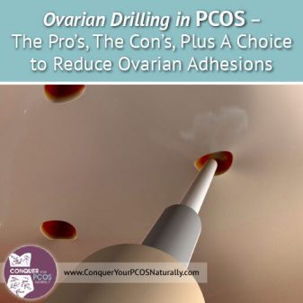 Ovarian Drilling in PCOS – The Pro's, The Con's, Plus A Choice to Reduce Ovarian Adhesions